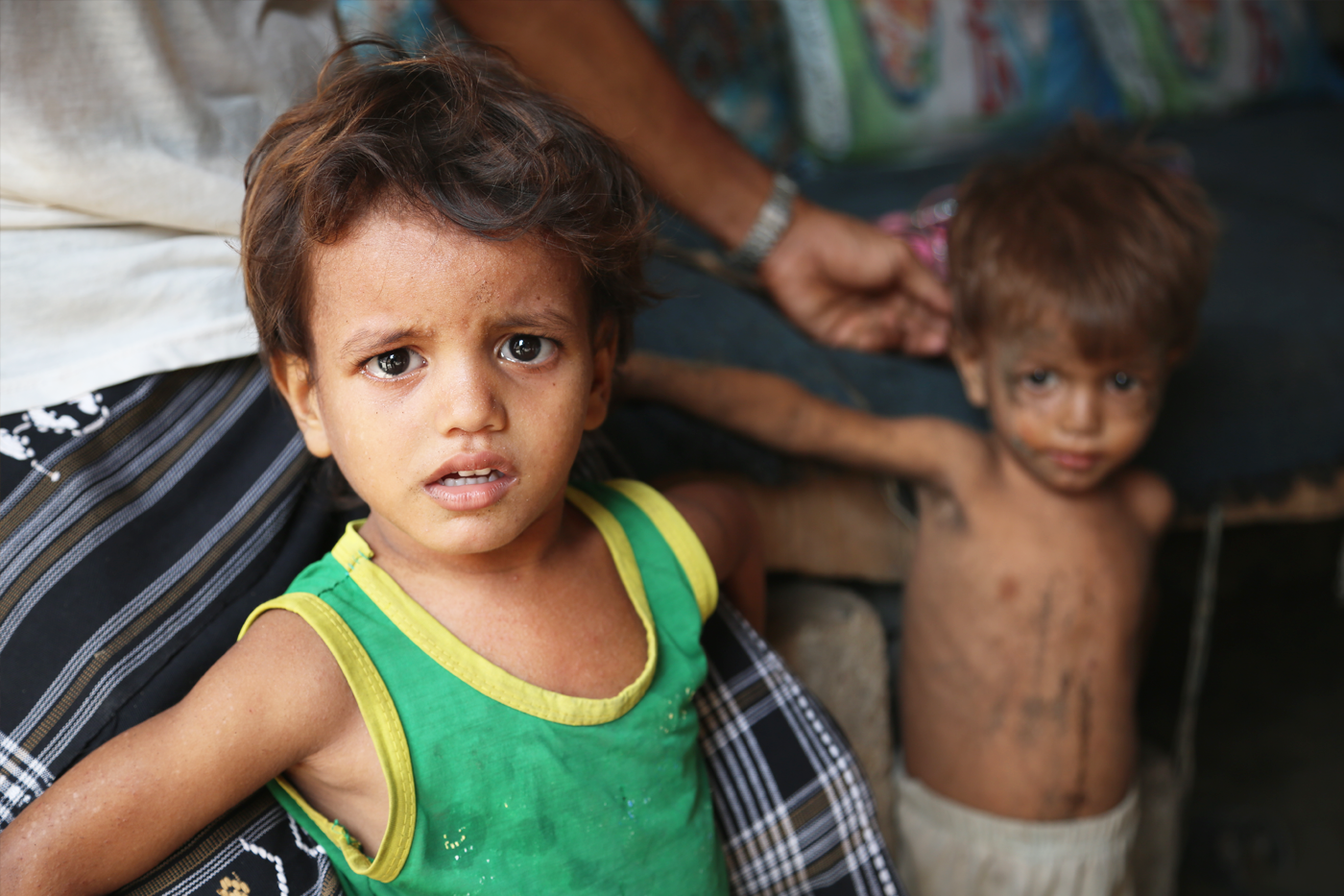Food rations are helping millions of Yemenis